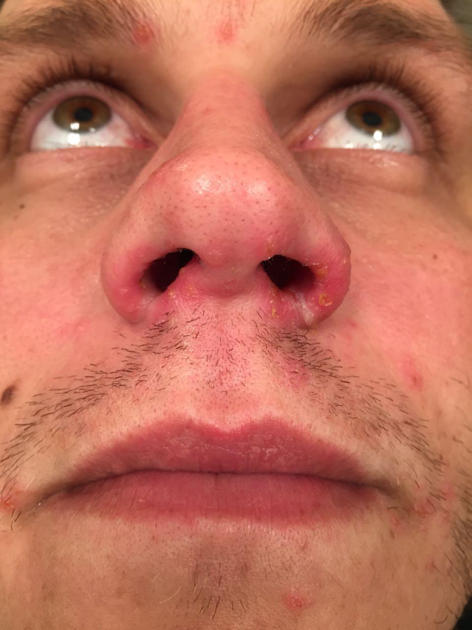 Nose Monday