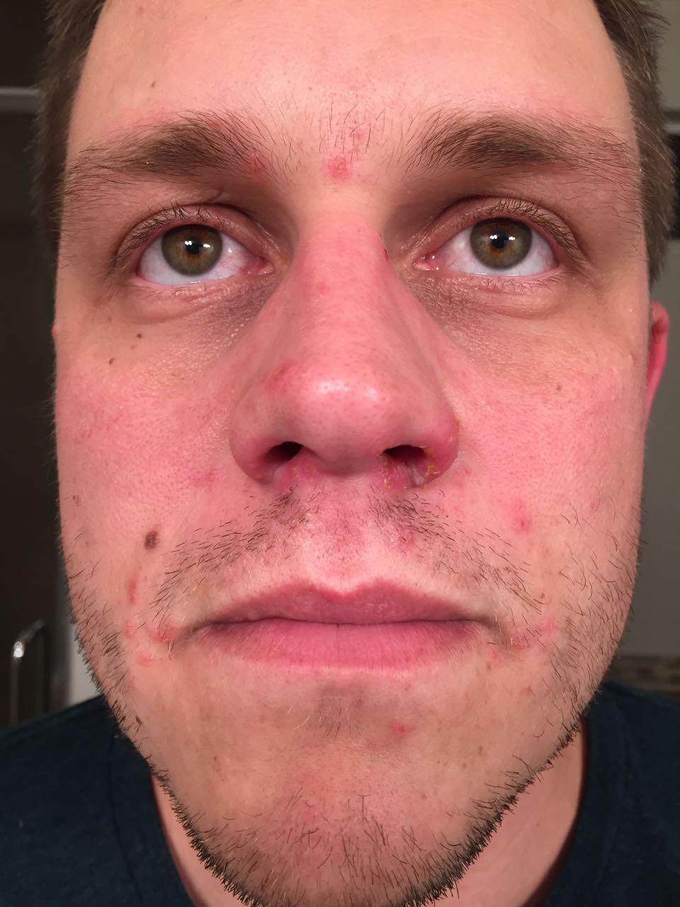 Face Monday