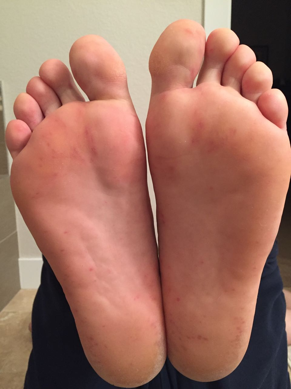 Feet Tuesday